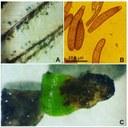 Ocorrência de Bipolaris Secalis em Heliocarpus americanus A) Conídios e conidióforos de B. secalis em sementes de H. americanus. B) Esporos de B. secalis (μm) vistos com microscópio óptico com ampliação de 40x. C) Sintomas da doença (manchas necróticas) em mudas de H. americanus.
